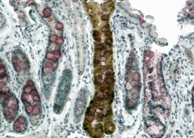 Engrafted Colon